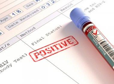 Tratamento contra HIV