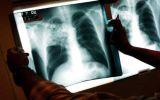 Combate à tuberculose