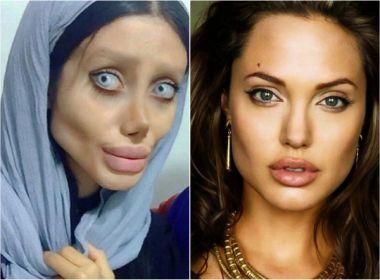 Iraniana faz mais de 50 plásticas para ficar parecida a Angelina Jolie; veja fotos