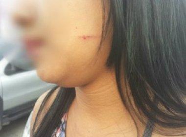 Atleta do CRB é suspeito de agressão a uma mulher em bar de Maceió
