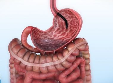 Redução de estômago por endoscopia é testada no Brasil