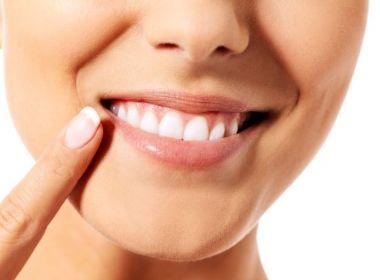 Truques simples para ter uma boca mais saudável