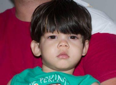 Síndrome raríssima é diagnosticada em criança de Feira; Veja como ajudar