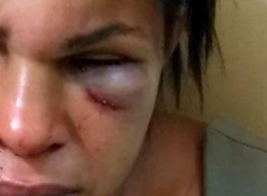 Ubatã: Mulher é espancada por companheiro que ciumava de interação em rede social