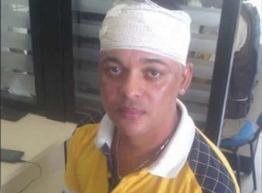 Prado: Na abertura do carnaval músico é assaltado e sofre tentativa de homicídio