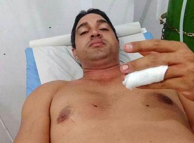Comerciante sofre tentativa de homicídio em zona rural de Queimadas