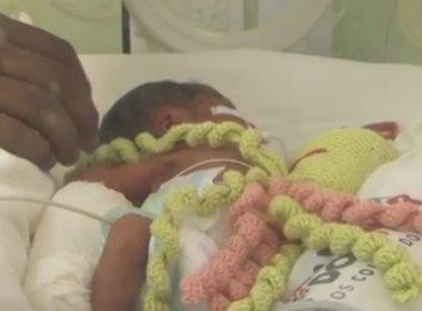 Feira: Hospital usa bonecos em formato de polvo em terapia de bebês prematuros