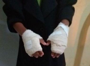 Amélia Rodrigues: Mulher é presa após queimar a mão de criança por ' mau comportamento'