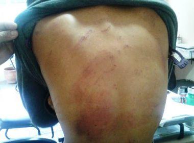 Jovem é agredida e mantida em cárcere privado em Feira; suspeito é ex-namorado