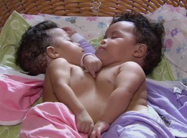 Gêmeas siamesas nascidas na Bahia passam por cirurgia de separação em Goiânia