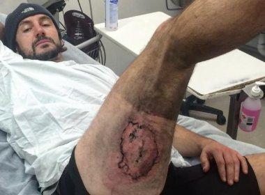iPhone explode e provoca queimaduras em perna de ciclista na Austrália