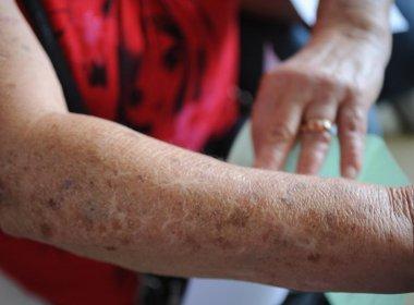 25 mil casos de câncer devem ser registrados na Bahia em 2016
