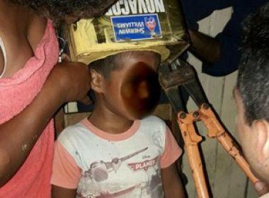 Menino de 5 anos fica com cabeça entalada ao brincar com lata de tinta