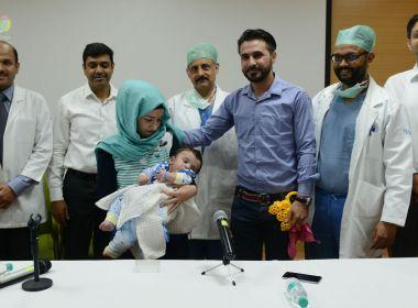 Bebê com oito braços e pernas tem membros extras retirados em cirurgia na Índia