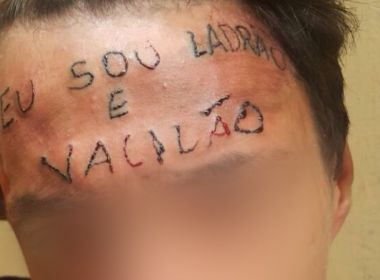 Jovem passa por primeira sessão para remover tatuagem com frase 'eu sou ladrão e vacilão'