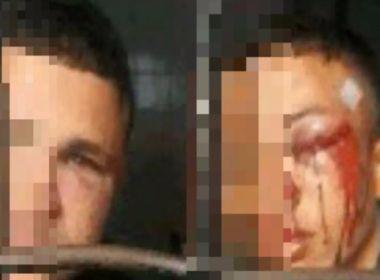 Mãe de jovem preso em flagrante tenta registrar queixa após filho ser agredido