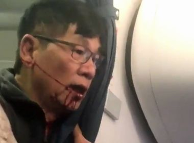 Passageiro agredido em avião pode ficar com danos cerebrais permanentes