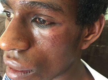 Confundido com um ladrão, jovem negro é espancado na frente de seguranças