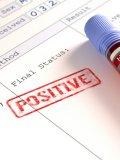 Medo de preconceito é um dos motivos para que pessoas não busquem tratamento de HIV