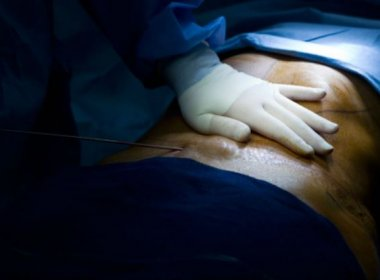 Lipoaspiração é o procedimento estético que mais mata no Brasil