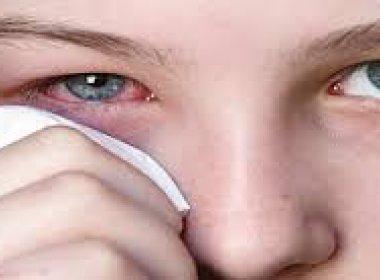 primavera-aumenta-o-risco-de-conjuntivite-alergica