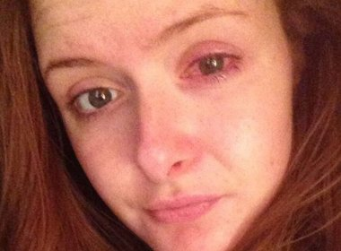Jovem arranca a córnea ao retirar lente que ficou 12 horas no olho