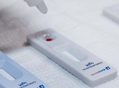 Testes rápidos de chikungunya da Bahiafarma podem ser liberados ainda este ano no SUS