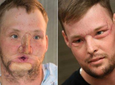 Após atirar em si mesmo, americano ganha segunda chance com transplante de rosto