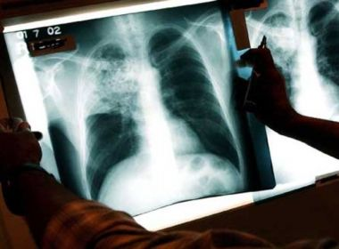 ms-lanca-plano-pelo-fim-da-tuberculose