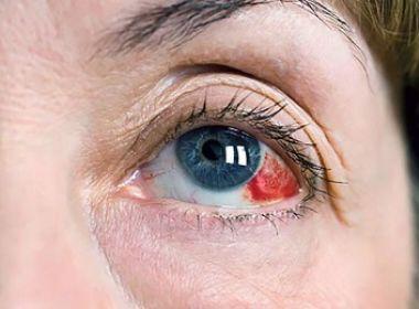 Em combate ao glaucoma, shopping oferece exames gratuitos a partir desta segunda