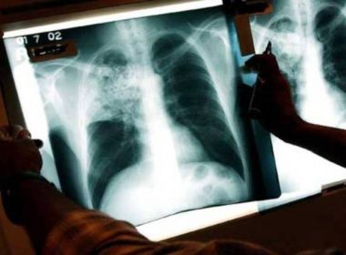 Ministério da Saúde lança Plano Nacional pelo Fim da Tuberculose