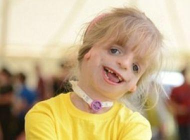 Síndrome rara impede desenvolvimento de tecidos do rosto de criança