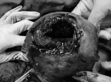 Gestante quase morre após chute de feto romper o útero