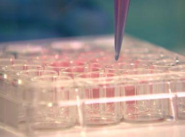 Zika tem capacidade de matar células cancerígenas do cérebro, descobrem brasileiros