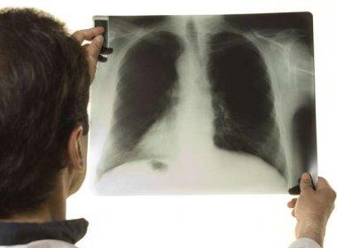 Cai a mortalidade por câncer de pulmão entre os homens, diz estudo