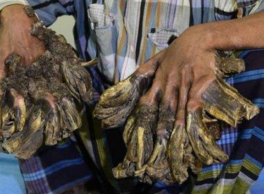 Hospital se prepara para operar 'homem-árvore' em Bangladesh