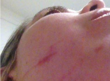 Foliã do Camaleão relata ter sido espancada e assaltada dentro do bloco