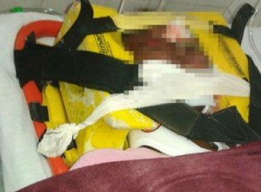 Caravelas: Homem agride e atropela esposa após ser flagrado com outra mulher