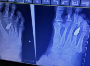 Mulher sente dor no pé e descobre que foi atingida por fuzil na noite de réveillon no RJ