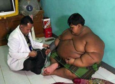 Mãe relata batalha de filho com obesidade: 'Com 10 anos, ele pesa 188 kg'
