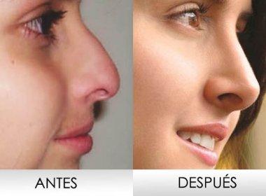 Cirurgia plástica, bichectomia é indicada para 'corrigir' bochechas