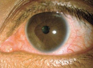 Pesquisa aponta que Zika pode causar problemas oculares em adultos