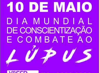 Estimativa de população portadora de lúpus em Salvador é de 1.500; Bahia teria sete mil casos