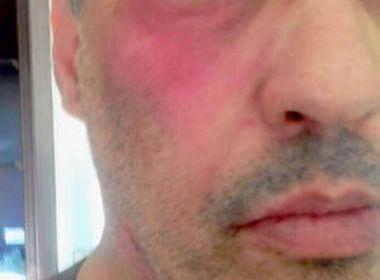 Após negar atestado, médico é agredido em pronto-socorro
