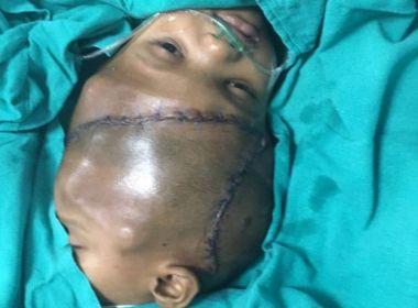 Em cirurgia de 36 horas, médicos separam gêmeos indianos unidos pela cabeça